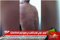 فيديو .. ليمني تعرض للتعذيب في سجون اليمن المدارة إماراتيا
